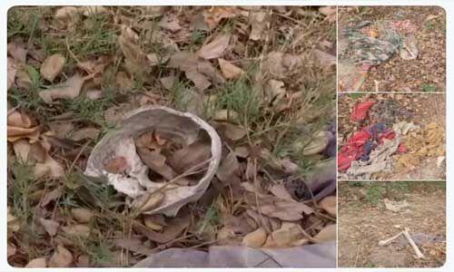 मुजफ्फरपुर के सरकारी अस्पताल में मिले मानव कंकाल