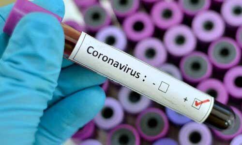 अमेरिका ने कराए 25 लाख लोगों के टेस्ट, सामने आए कोरोना के 30000 पॉजिटिव मामले
