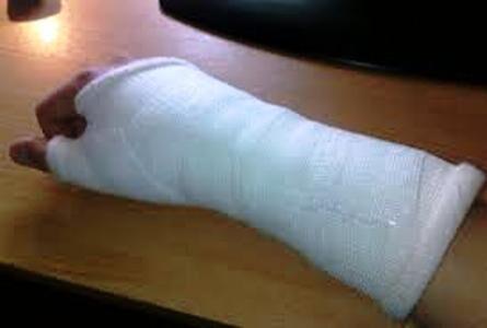 चिकित्सक की लापरवाही से टूटे हाथ, किया हंगामा