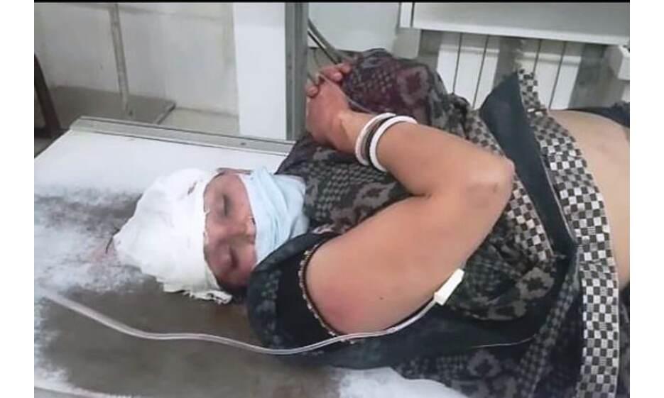मुरैना में दहशत फैलाने बाइक सवारों ने सड़कों पर चलाई गोलियां, महिला घायल