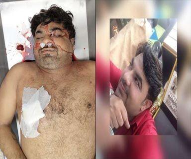 दिल्ली से आगरा आ रहे दो कारोबारियों को बदमाशों ने मारी गोली, एक की मौत